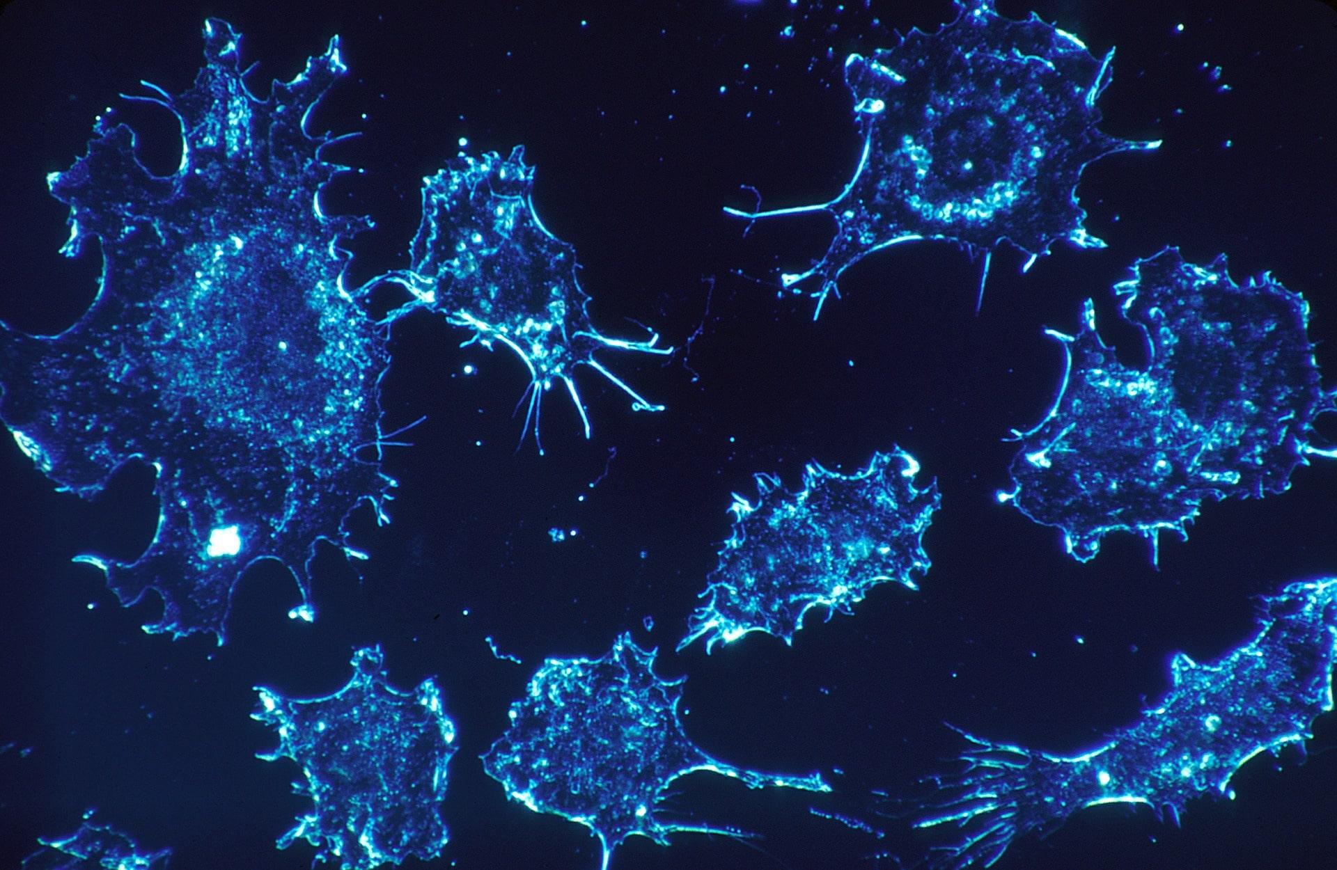 Krebszellen unter dem Mikroskop
